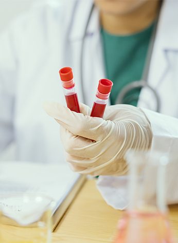 抗人的二抗是各类免疫分析中的关键试剂