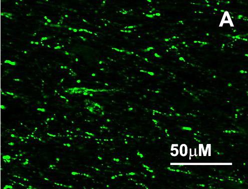 神经肽RFRP-3