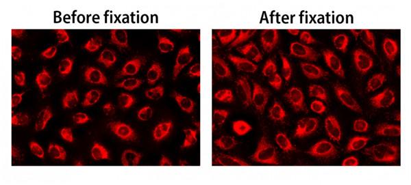 HeLa細胞熒光圖像