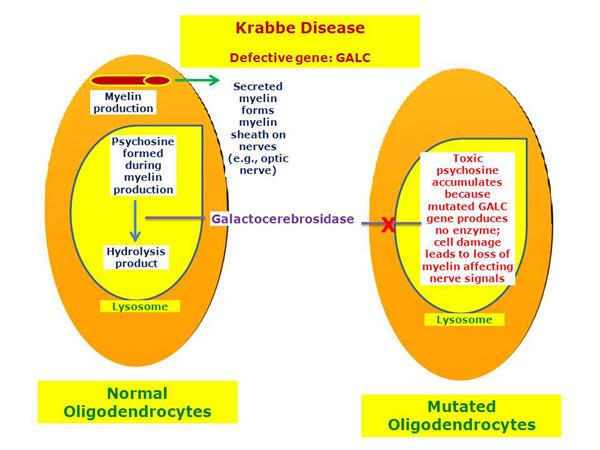 半乳糖神经酰胺类与克拉伯病