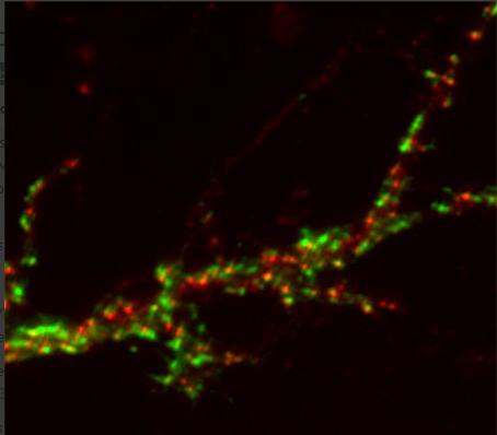 GABA-A receptor gamma2