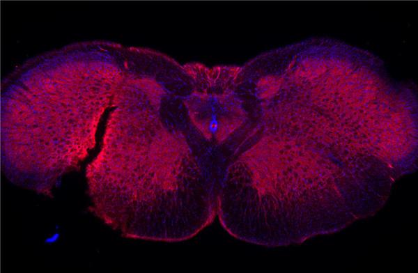 Glycine receptor alpha 1