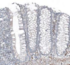 SALL4?/ spalt-like transcription factor 4