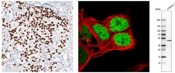 多能性胚胎干細胞是通過表達多種多能性標記物鑒定的